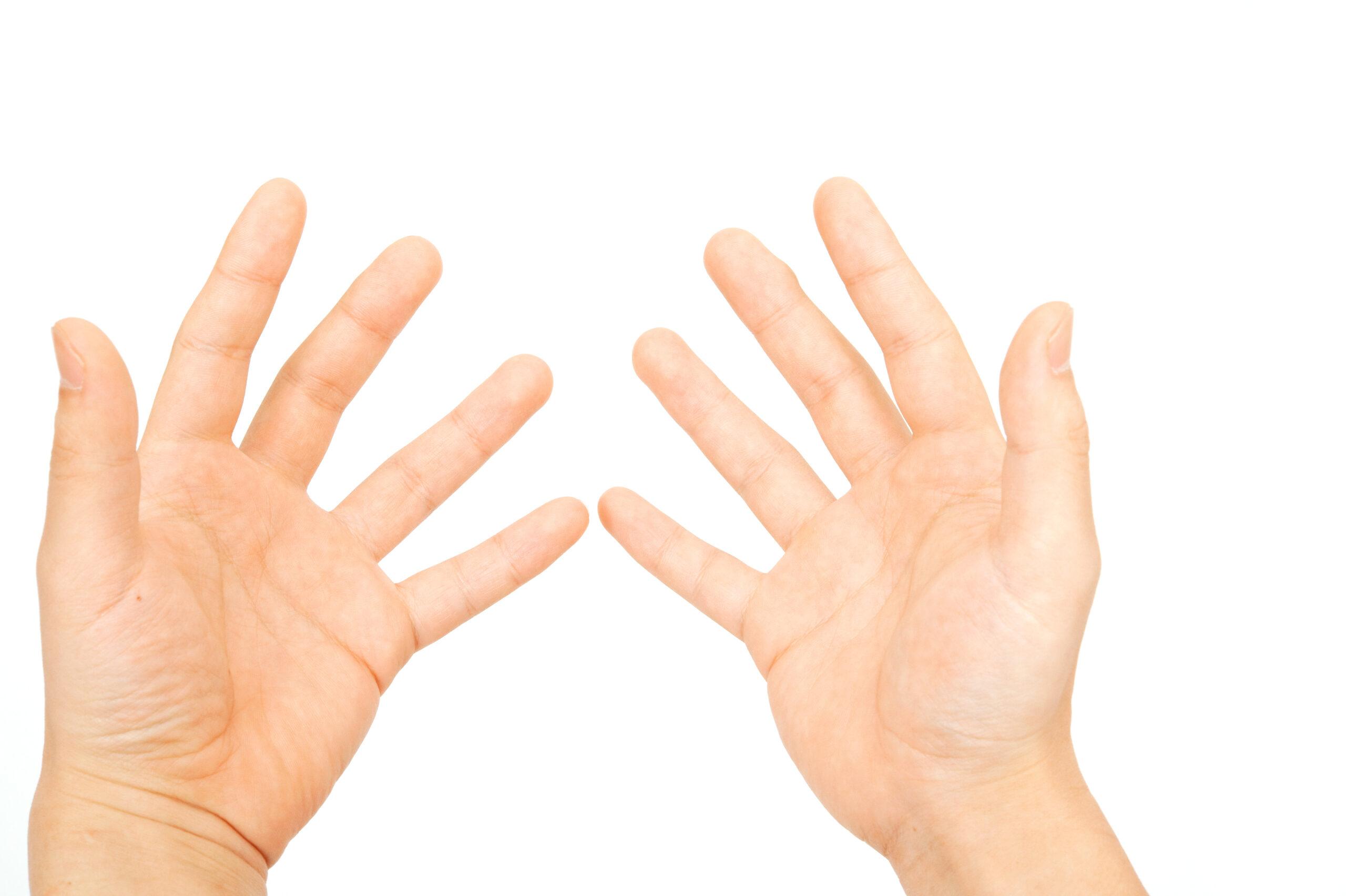 ばね指イメージ写真